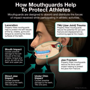 mouth guards protect teeth